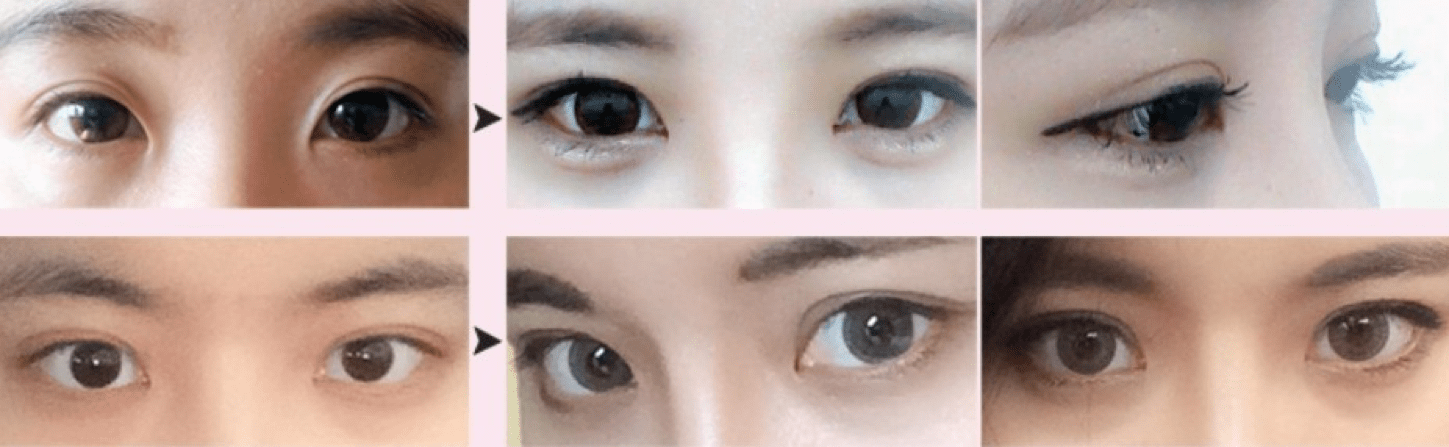 Non-incisional Double Eyelid Surgery