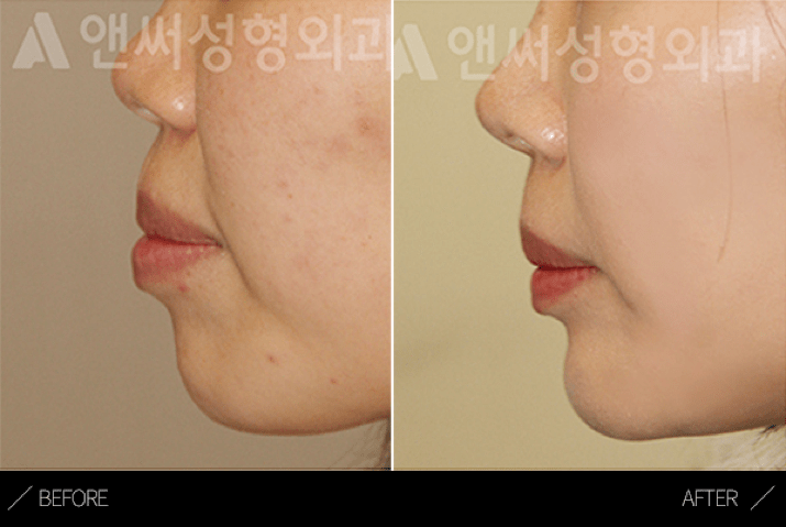 Protrusion correction