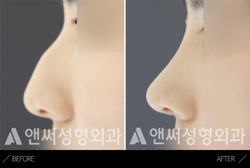 Hump Nose Removal