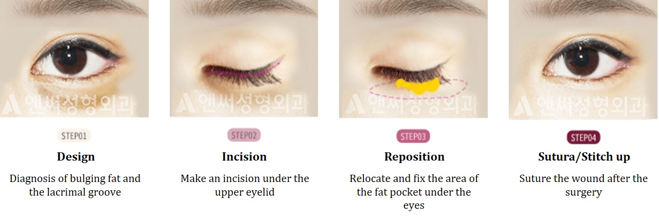 Under Eye Fat Removal & Repositioning
