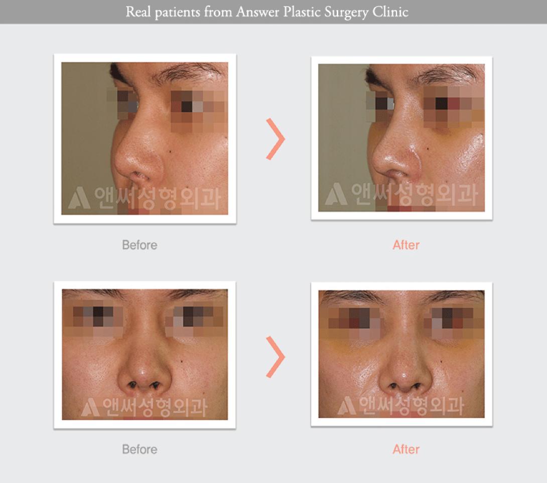 Rhinoplasty in Korea - Korean Nose Job Procedure
